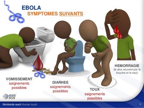 SYMPTOMES-EBOLA